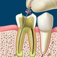 Clinica dental coproaro tratamiento de endodoncia